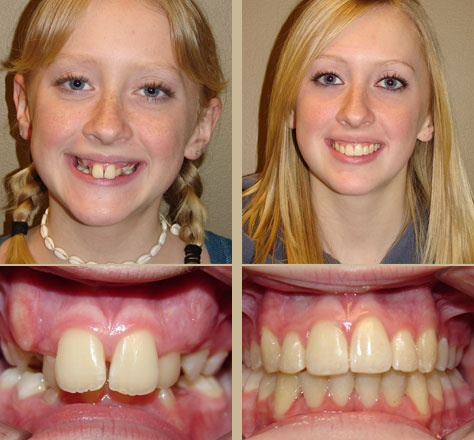Before and after adult braces idea